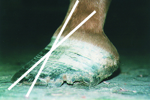 This foot shows the undesirable effects of a long toe and heel.  Note the misalignment of the hoof/pastern axis.